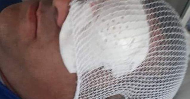 İranlı zorbalar, Türk TIR şoförünü kör etti